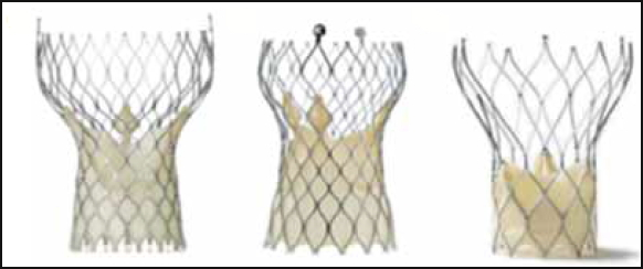 Transcatheter aortic valve implantation: initial experience in Hong Kong