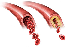 Guidance on the management of familial hypercholesterolaemia in Hong Kong: an expert panel consensus viewpoint